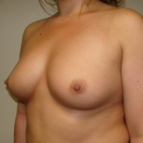 Before Photo - Breast Augmentation - Case #2680 - Oblique View