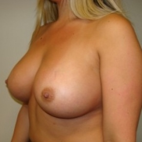 After Photo - Breast Augmentation - Case #2680 - Oblique View