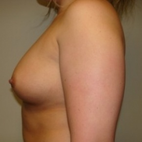 Before Photo - Breast Augmentation - Case #2680 - Lateral View
