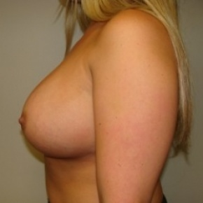 After Photo - Breast Augmentation - Case #2680 - Lateral View