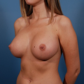 After Photo - Breast Augmentation - Case #2684 - Saline Breast Augmentation - Oblique View