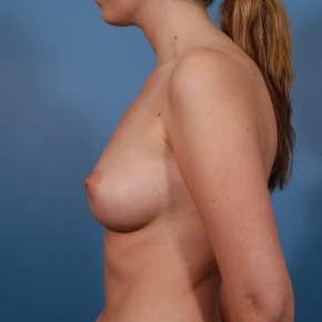 Before Photo - Breast Augmentation - Case #2684 - Saline Breast Augmentation - Lateral View