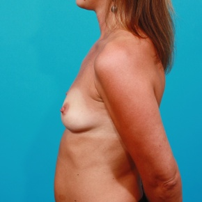 Before Photo - Breast Augmentation - Case #2685 - Saline Breast Augmentation - Lateral View