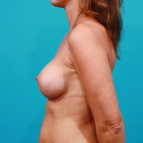 After Photo - Breast Augmentation - Case #2685 - Saline Breast Augmentation - Lateral View