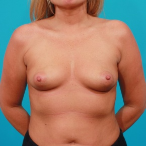 Before Photo - Breast Augmentation - Case #2686 - High Profile Gel Implants - Frontal View