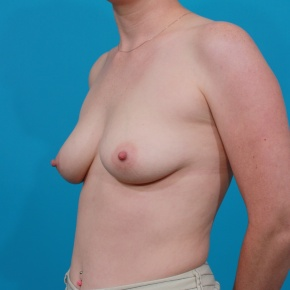 Before Photo - Breast Augmentation - Case #2687 - Saline Breast Augmentation - Oblique View