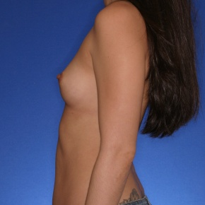 Before Photo - Breast Augmentation - Case #2763 - Breast augmentation saline - Lateral View