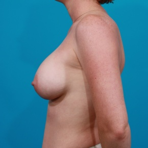 After Photo - Breast Augmentation - Case #2687 - Saline Breast Augmentation - Lateral View