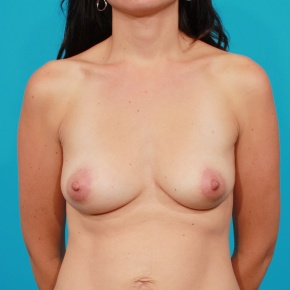 Before Photo - Breast Augmentation - Case #2689 - Silicone Breast Augmentation - Frontal View