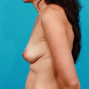 Before Photo - Breast Augmentation - Case #2689 - Silicone Breast Augmentation - Lateral View