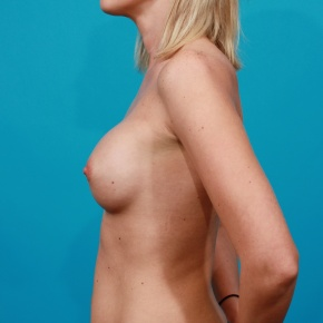 After Photo - Breast Augmentation - Case #2690 - Silicone Breast Augmentation - Lateral View
