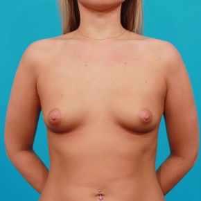 Before Photo - Breast Augmentation - Case #2691 - Saline Breast Augmentation - Frontal View