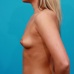 Before Photo - Breast Augmentation - Case #2691 - Saline Breast Augmentation - Lateral View
