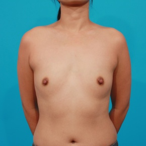 Before Photo - Breast Augmentation - Case #2692 - Silicone Breast Augmentation - Frontal View