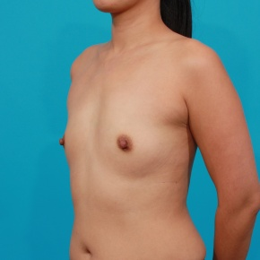 Before Photo - Breast Augmentation - Case #2692 - Silicone Breast Augmentation - Oblique View