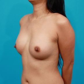 After Photo - Breast Augmentation - Case #2692 - Silicone Breast Augmentation - Oblique View
