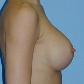 After Photo - Breast Augmentation - Case #2591 - Saline Breast Implants - Oblique View