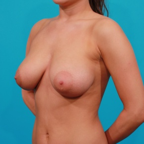 After Photo - Breast Augmentation - Case #2693 - Saline Breast Augmentation - Oblique View