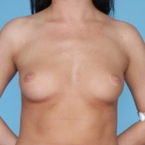 Before Photo - Breast Augmentation - Case #2702 - Frontal View