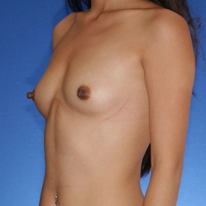 Before Photo - Breast Augmentation - Case #2771 - Breast augmentation silicone - Oblique View