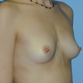 Before Photo - Breast Augmentation - Case #2591 - Saline Breast Implants - Lateral View