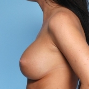 After Photo - Breast Augmentation - Case #2702 - Lateral View