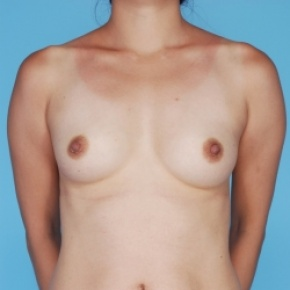 Before Photo - Breast Augmentation - Case #2704 - Frontal View