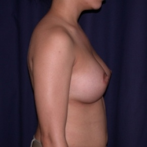 After Photo - Breast Augmentation - Case #2521 - PeriAreolar Breast Augmentation - Lateral View