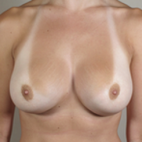 After Photo - Breast Augmentation - Case #2924 - Breast Augmentation New Jersey - Frontal View