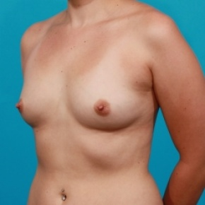Before Photo - Breast Augmentation - Case #2474 - Silicone Breast Implants - Oblique View