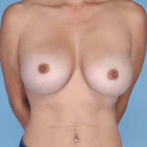 Before Photo - Breast Augmentation - Case #2712 - Breast Reaugmentation  - Frontal View