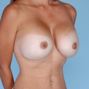 After Photo - Breast Augmentation - Case #2712 - Breast Reaugmentation  - Oblique View
