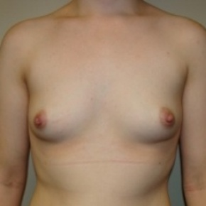 Before Photo - Breast Augmentation - Case #2716 - Frontal View