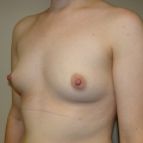 Before Photo - Breast Augmentation - Case #2716 - Lateral View