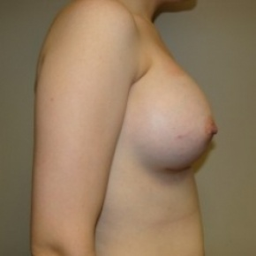 After Photo - Breast Augmentation - Case #2716 - Posterior Oblique View