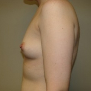 Before Photo - Breast Augmentation - Case #2716 - Posterior View