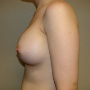 After Photo - Breast Augmentation - Case #2716 - Posterior View