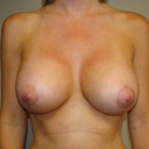 After Photo - Breast Augmentation - Case #2717 - Frontal View