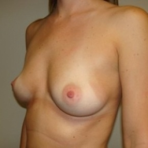 Before Photo - Breast Augmentation - Case #2717 - Lateral View