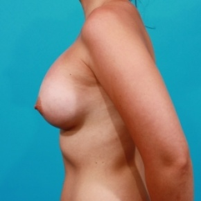After Photo - Breast Augmentation - Case #2474 - Silicone Breast Implants - Lateral View