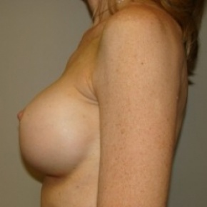 After Photo - Breast Augmentation - Case #2718 - Lateral View