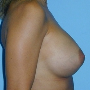 After Photo - Breast Augmentation - Case #2592 - Saline Breast Implants - Oblique View