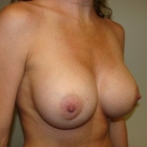 After Photo - Breast Augmentation - Case #2719 - Oblique View