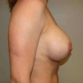 After Photo - Breast Augmentation - Case #2719 - Posterior Oblique View