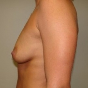 Before Photo - Breast Augmentation - Case #2719 - Posterior View