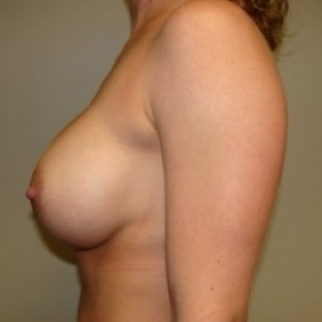 After Photo - Breast Augmentation - Case #2719 - Posterior View