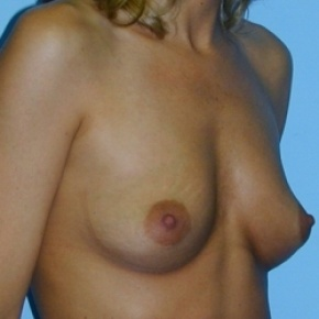 Before Photo - Breast Augmentation - Case #2592 - Saline Breast Implants - Lateral View