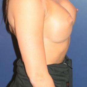 After Photo - Breast Augmentation - Case #2722 - Proportional Breast Augmentation - Lateral View