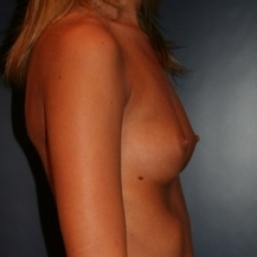 Before Photo - Breast Augmentation - Case #2723 - Proportional Breast Augmentation - Lateral View