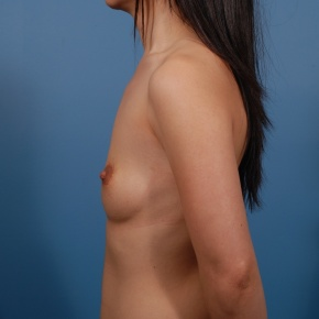 Before Photo - Breast Augmentation - Case #2745 - Textured Silicone Breast Augmentation - Lateral View